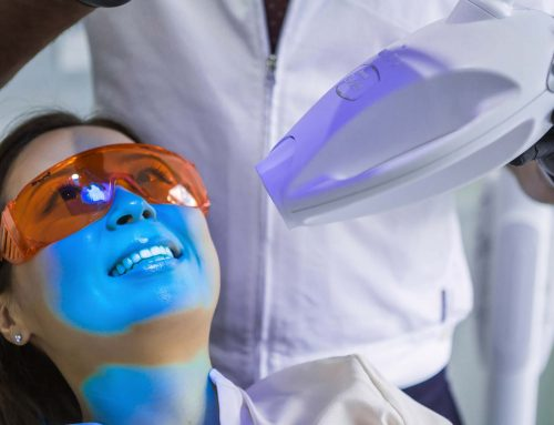 In-chair teeth whitening vs alternatives
