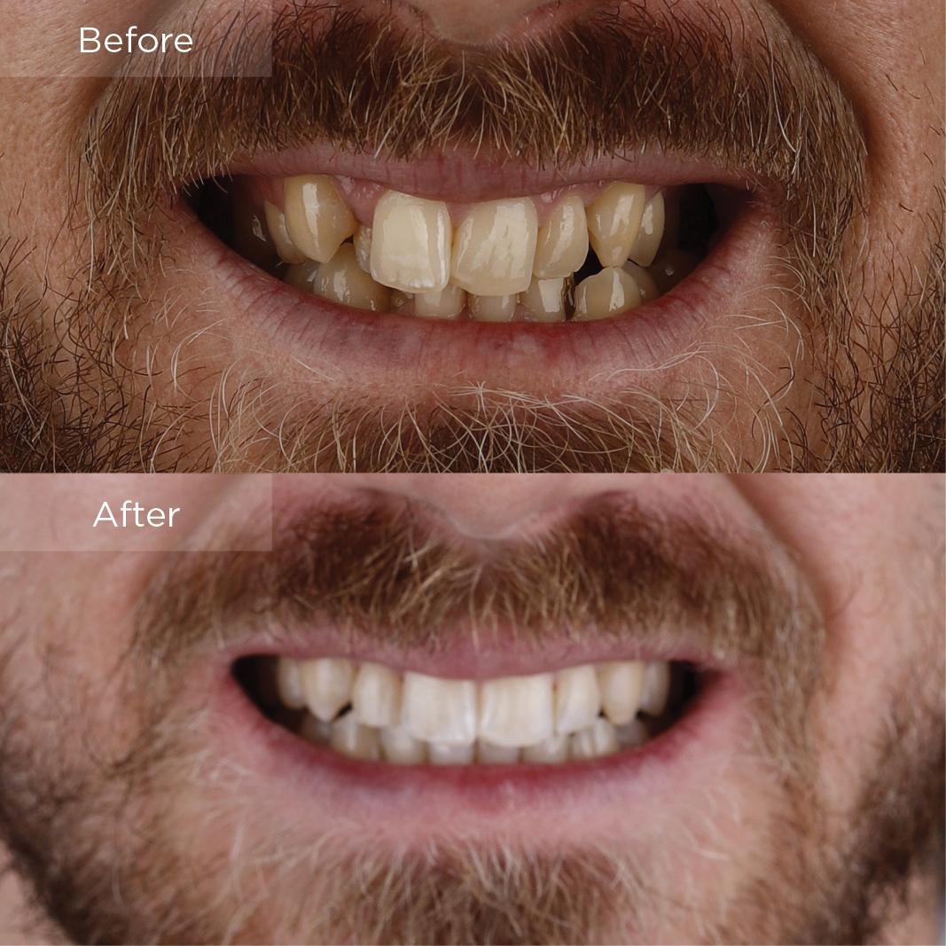 Luke Invisalign Before & After